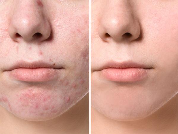 Acne Treatments Buckeye, AZ
