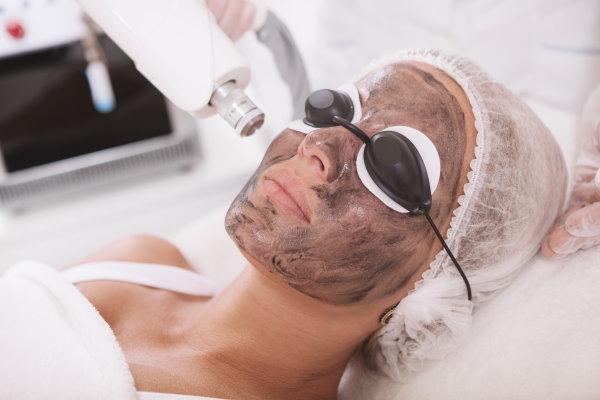 Carbon Laser Facial in Buckeye, AZ